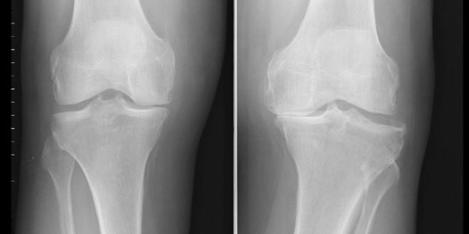 Le distorsioni del ginocchio come comportarsi villa for Dolori articolari cause