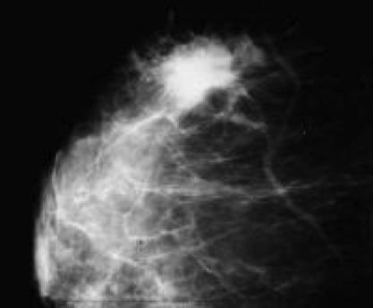 la mammografia