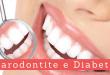 Parodontite - Casa di Cura Privata Villa Mafalda di Roma