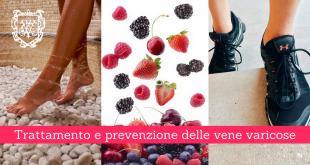 Trattamento e prevenzione delle vene varicose - Casa di Cura Privata Villa Mafalda di Roma