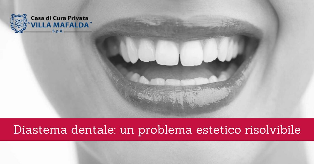 Diastema dentale: un problema estetico risolvibile