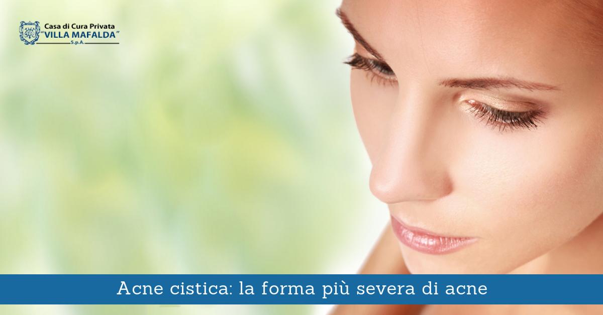 Acne cistica: la forma più severa di acne