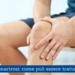 Gonartrosi, come può essere trattata - Casa di Cura Villa Mafalda di Roma - Villa Mafalda Blog