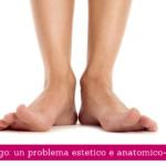 Alluce valgo, un problema estetico e anatomico-funzionale - Casa di Cura Villa Mafalda di Roma - Villa Mafalda Blog