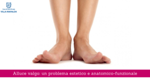 Alluce valgo: un problema estetico e anatomico-funzionale