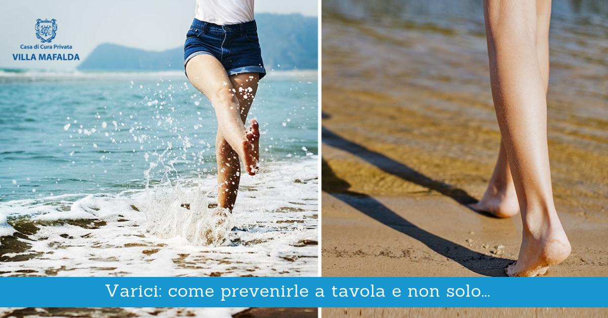 Varici, prevenirle a tavola e non solo - Casa di Cura Villa Mafalda di Roma - Villa Mafalda Blog