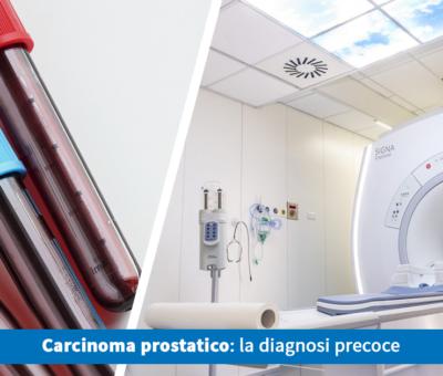Carcinoma prostatico: la diagnosi precoce