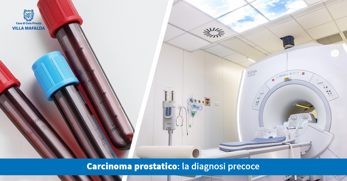 Carcinoma prostatico, la diagnosi precoce - Casa di Cura Villa Mafalda di Roma - Villa Mafalda Blog