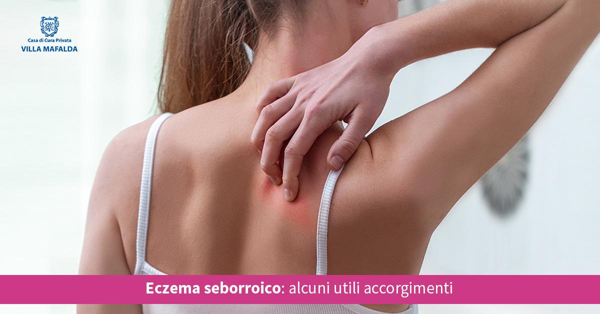 Eczema seborroico, alcuni utili accorgimenti - Casa di Cura Villa Mafalda di Roma - Villa Mafalda Blog